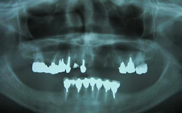 歯を失って諦めていませんか?